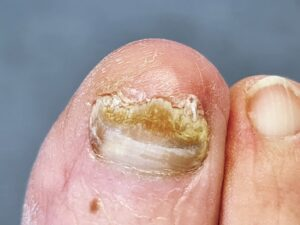 A toe with a fungal nail