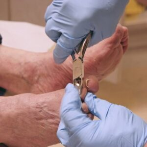 A podiatrist trimming a patient's toenails with clippers